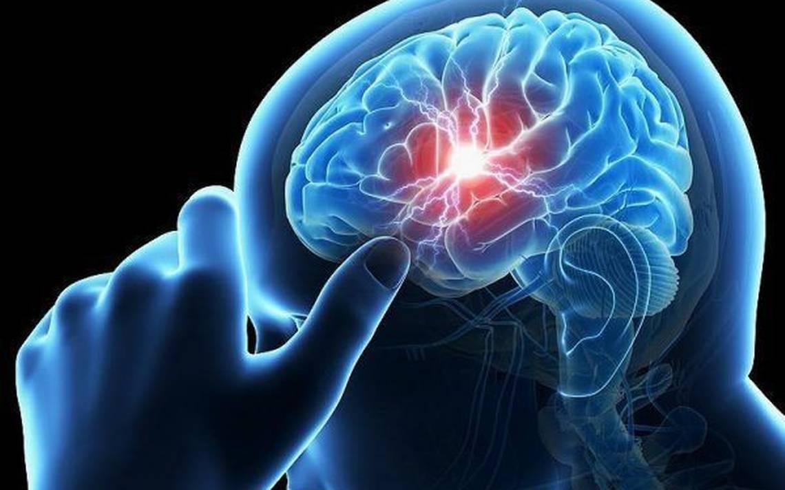 Suman 9 mil eventos de enfermedad vascular cerebral al año en Jalisco - El  Occidental   Noticias Locales, Policiacas, sobre México, Guadalajara y el  Mundo